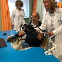 Colpito da un ictus, torna a muovere il braccio grazie a una mano bionica