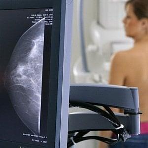Cancro al seno, la vittoria di Emma: la Regione Piemonte ora le riconosce i controlli gratis