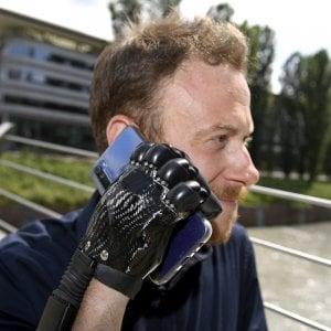Torino, aveva  perso la mano in incidente sul lavoro, riacquista l'arto con una protesi bionica