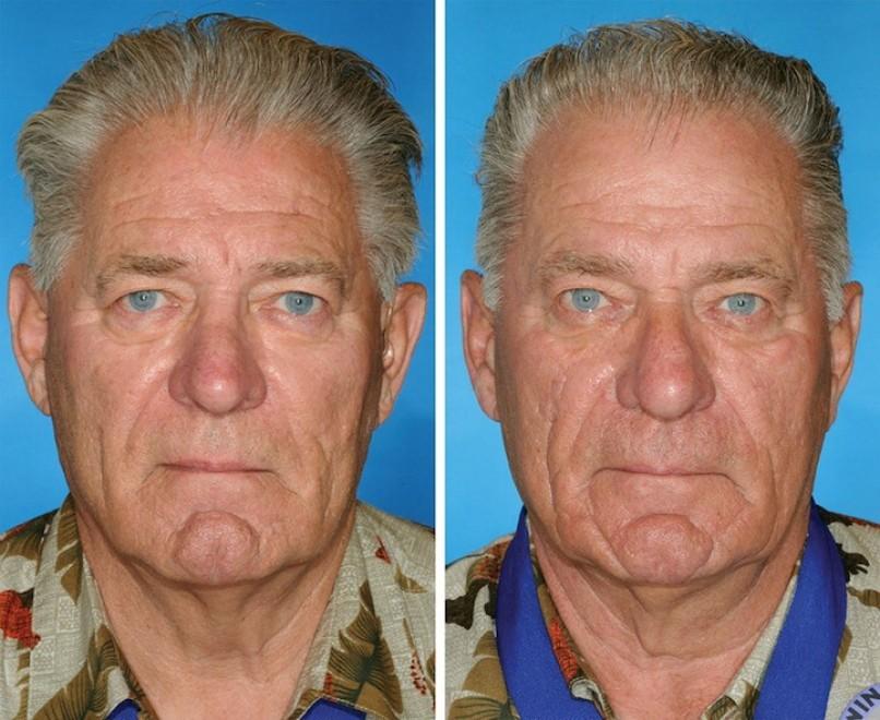 Quando il gemello non fuma: la differenza sulla pelle