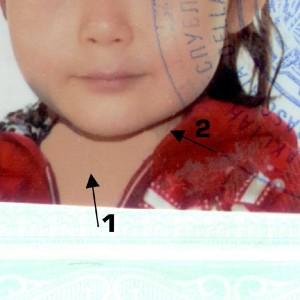 """La foto ritoccata della piccola Alua. """"Falso il documento per l'espulsione"""""""