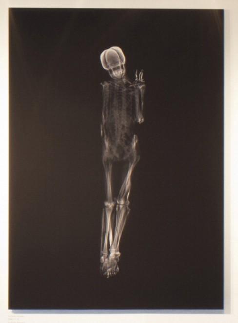 Coppie allo scan: ecco l'amore ai raggi X