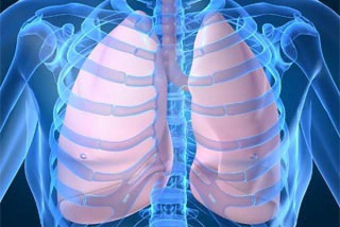 Tumori: un test del sangue svela  il cancro al polmone due anni prima