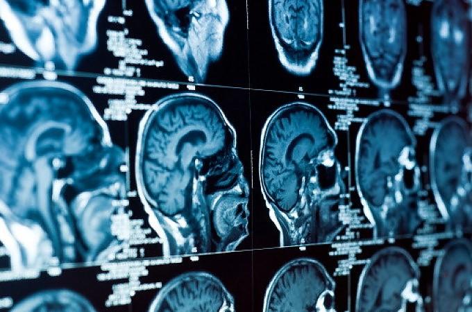 """""""Scoperta"""" una cura per l'amiloidosi:<br />un vecchio anti-infiammatorio fuori commercio"""