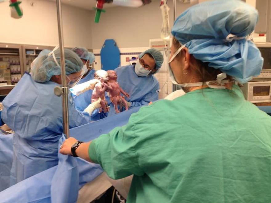 Usa, inseparabili dopo il parto: le gemelline mano nella mano - Repubblica.it