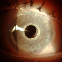 Trapianti, impianto cornea artificiale salva l'occhio a un bambino