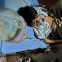 """Tubercolosi infantile: """"I casi aumentano del 25%"""""""