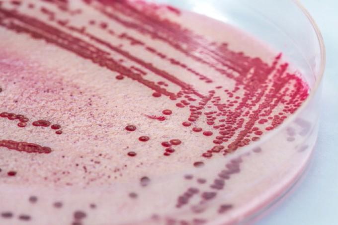 Batterio listeria, 12 morti in Danimarca
