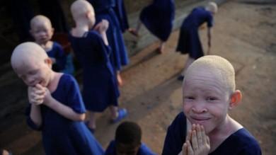 Tanzania, tra magia e malocchio il triste destino degli albini africani