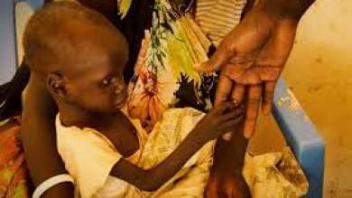 Sud Sudan, la malnutrizione  colpisce migliaia di bambini  tra un milione e mezzo di sfollati