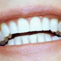 """Dentifrici abrasivi, quei """"salva-denti"""" poco miracolosi"""