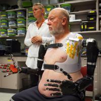 Le braccia bioniche si comandano con il pensiero