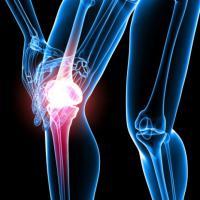 Ricerca, scoperte staminali che 'riparano' fratture ossee