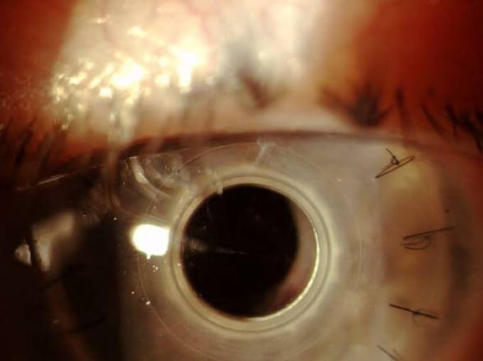 Staminali per riparare la cornea: italiano il primo farmaco al mondo