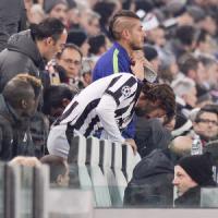 Juventus, Pirlo ko: stop di 20 giorni. Niente Roma, a rischio anche Pogba