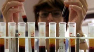 Aids, ricercatori italiani  scoprono dov'è nascosto  il virus Hiv nelle cellule