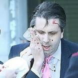Seul, ferito ambasciatore Usa aggredito con un rasoio   video   mentre parlava in pubblico   foto