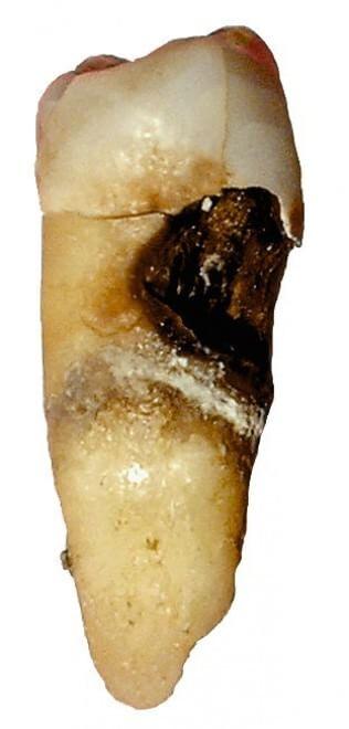 Otto cose da sapere sui denti