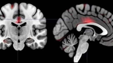 Cervello, estroversi e intraprendenti hanno più materia grigia degli altri   Foto