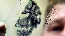 Speranze per l'Alzheimer  trovata causa malattia   Focus interattivo