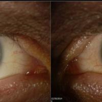 """Sopravvissuto a Ebola """"Ma ho il virus dentro così ha cambiato il colore dei miei occhi"""""""