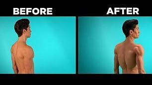 L'uomo di plastica: 191 interventi nuova operazione per farsi le 'ali'    Foto / D  - Chirurgia estrema
