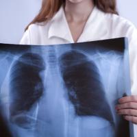 Tumore polmone, nuova immunoterapia dimezza la mortalità