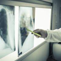 Tumori femminili, geni Brca1 e Brca2 mutati: il test fa prevenzione, ma in Italia costa...