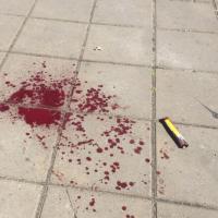 Ucraina, estremisti di destra attaccano il gay pride a Kiev
