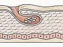 Scabbia, tutta colpa di un acaro molto contagiosa, ma facile da curare