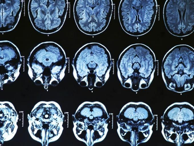 Identificata una proteina nel sangue che potrebbe predire il rischio di Alzheimer