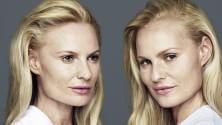 10 coppie di gemelli: chi è ritoccato e chi no?