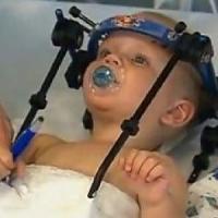 """Australia, operazione miracolosa """"riattacca"""" la testa a un bimbo di 16 mesi"""