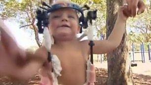 Operazione miracolosa  -   Leggi    il piccolo Jackson già cammina