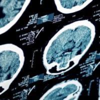 Scoperto il meccanismo di crescita del tumore al cervello