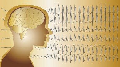 Epilessia, una Giornata per dire forte che una vita normale è possibile -   guida