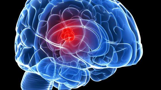 Arrivano dei mini cervelli umani per la ricerca scientifica