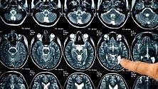 Alzheimer, anti-cancro  riesce a prevenire  formazione delle placche