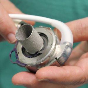 Impiantato cuore magnetico provvisorio per la prima volta su paziende pediatrico