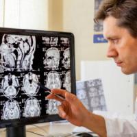 Ictus e danni neurologici: la scommessa della scienza sul fattore-tempo