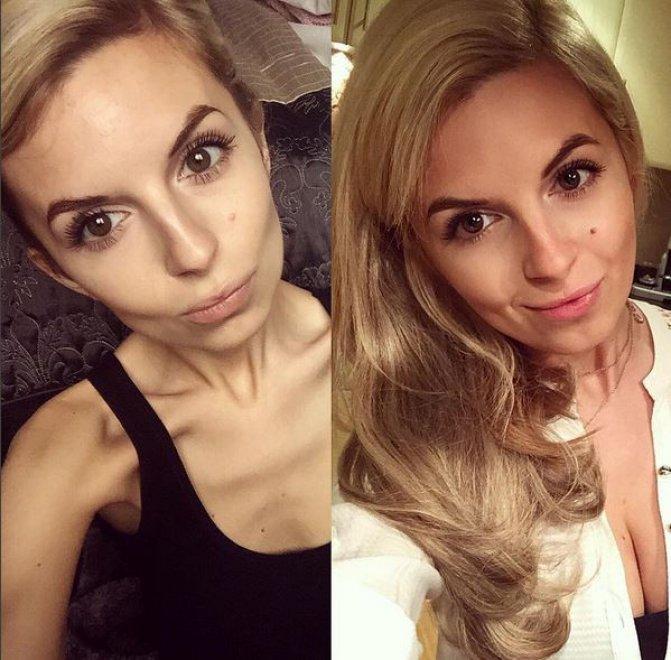 Gb, gli scatti prima e dopo l'anoressia: su Instagram la vittoria sulla malattia