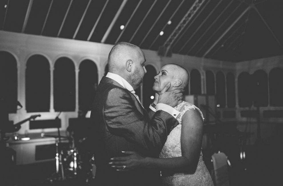 Una fantastica storia d'amore: la sposa si rasa a zero per il marito malato