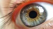 Forma cecità ereditaria resa reversibile -   foto   grazie a terapia genica