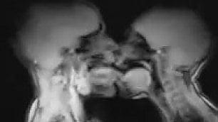 Bere, baciare, nascere ai raggi X Gli esseri umani funzionano così