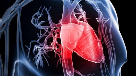 infarto asintomatico
