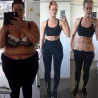 Perde 88 chili, su Instagram il diario della trasformazione: ''Ecco le mie cicatrici''