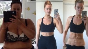 La seconda pelle di Simone ''Come ho perso 88 chili''