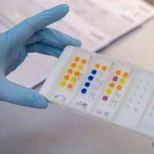 'Vaccino' antitumore, in Germania al via i primi test sull'uomo