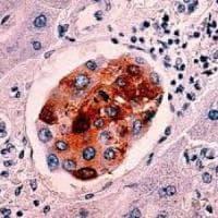 Biopsia liquida, un test del sangue la nuova arma per monitorare il cancro e tarare le...
