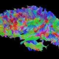 ''Switch'' cerebrale per salvare il cervello: è il primo caso al mondo